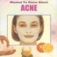 ALL YOU WANTED TO KNOW ABOUT: ACNE (pb)2001